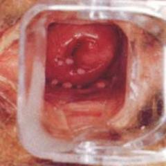 como se manifiesta el cancer de pene