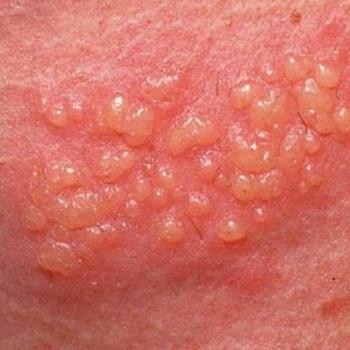Enfermedades venerias en la vulva